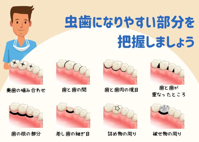 虫歯になりやすい部分を把握しましょう